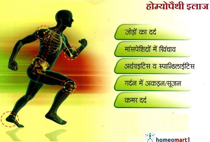 arthritis-medicine-hindi-jodon-ka-dard-sujan