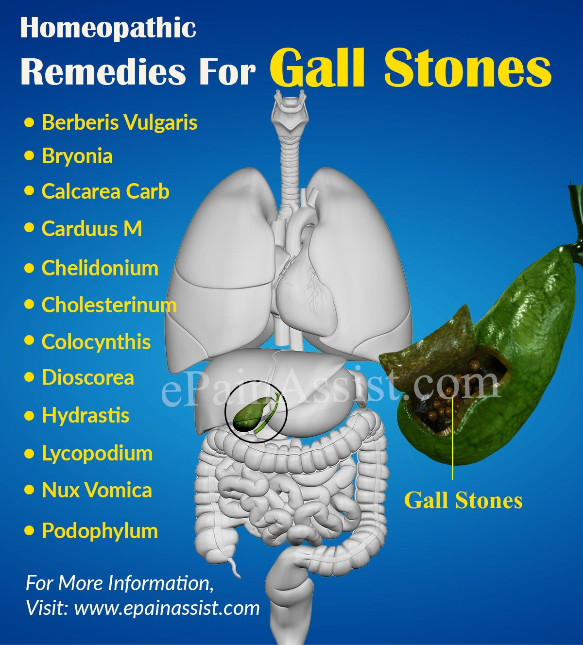 homeopathic-remedies-for-gall-stones-preview