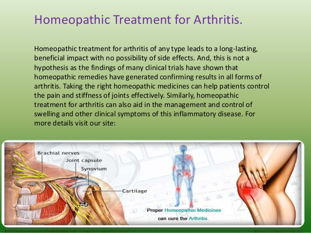 now-arthritis-can-easily-curable-in-homeopathy-treatment-4-638