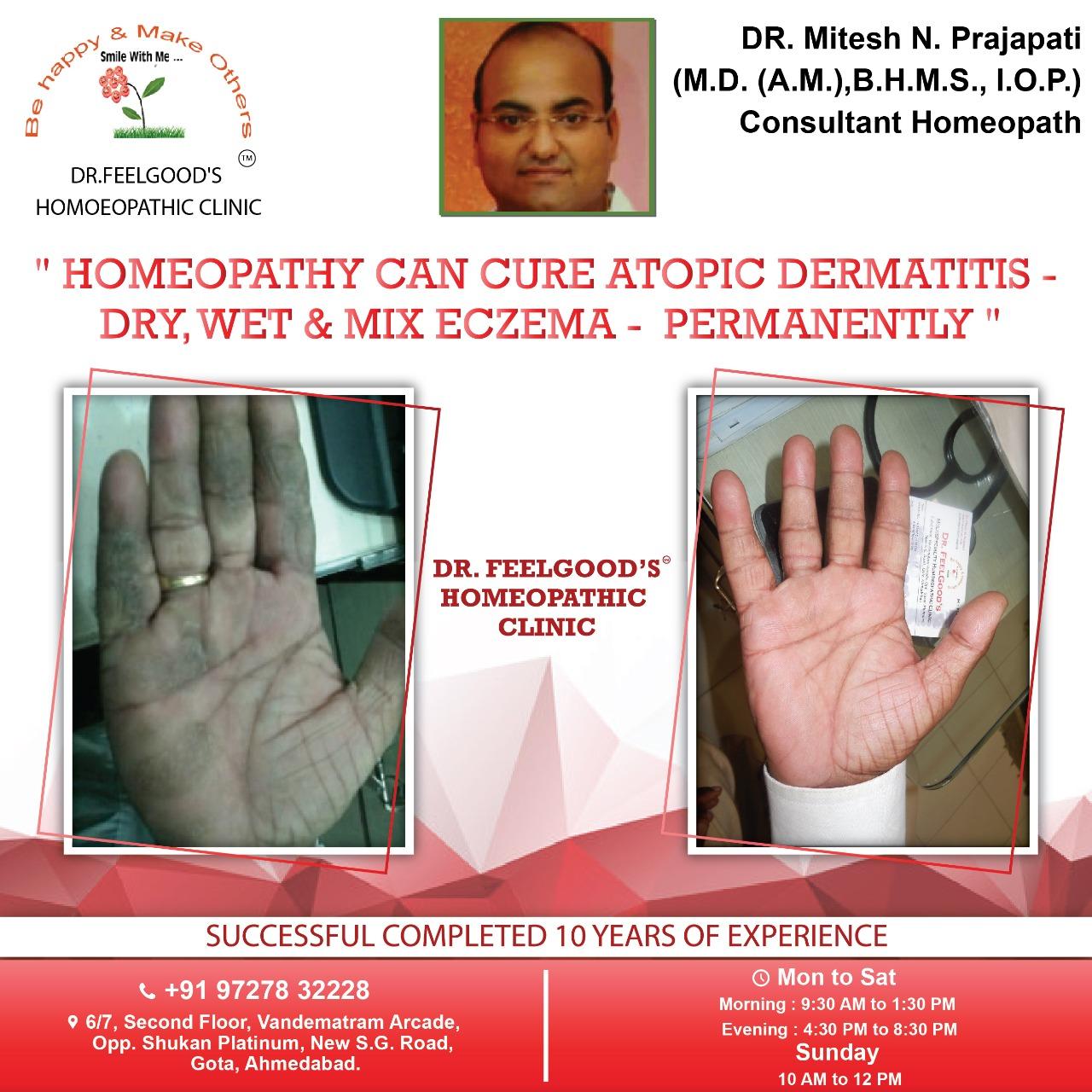 DR MITESH PRAJAPATI - HOMEOPATHY FOR ECZEMA (1)