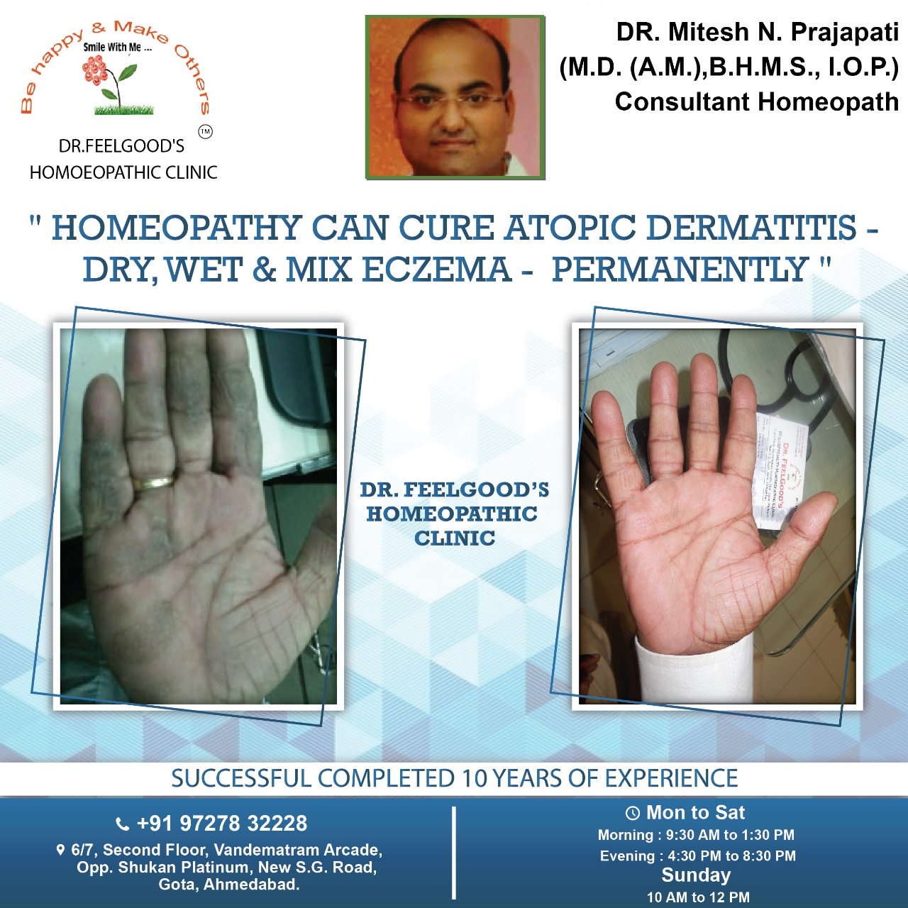 DR MITESH PRAJAPATI - HOMEOPATHY FOR ECZEMA (3)