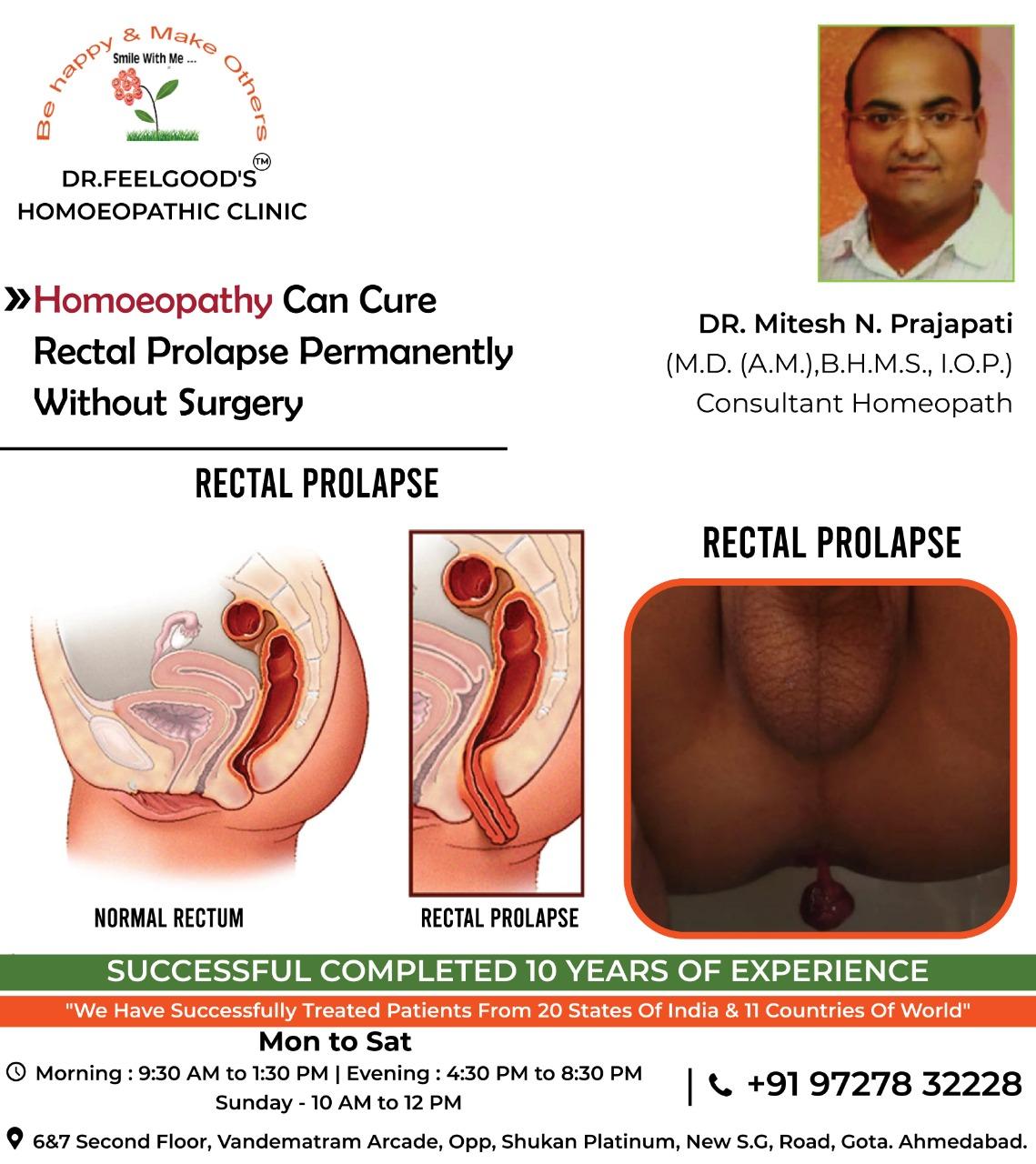 RECTAL PROLAPSE CUERD BY DR.MITESH PRAJAPATI